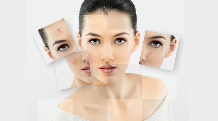 acne22