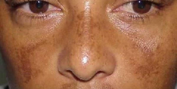 علاج-التصبغات-بعد-التقشير