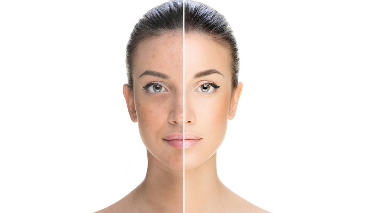 علاج-التصبغات-الجلدية-العميقة-بالليز