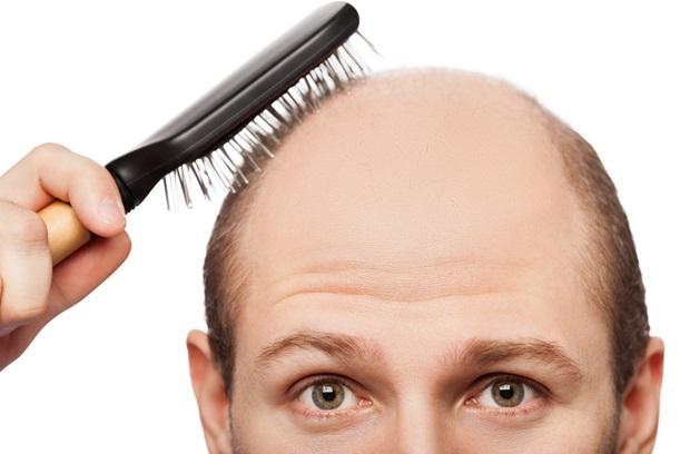 علاج-تساقط-الشعر-للرجال