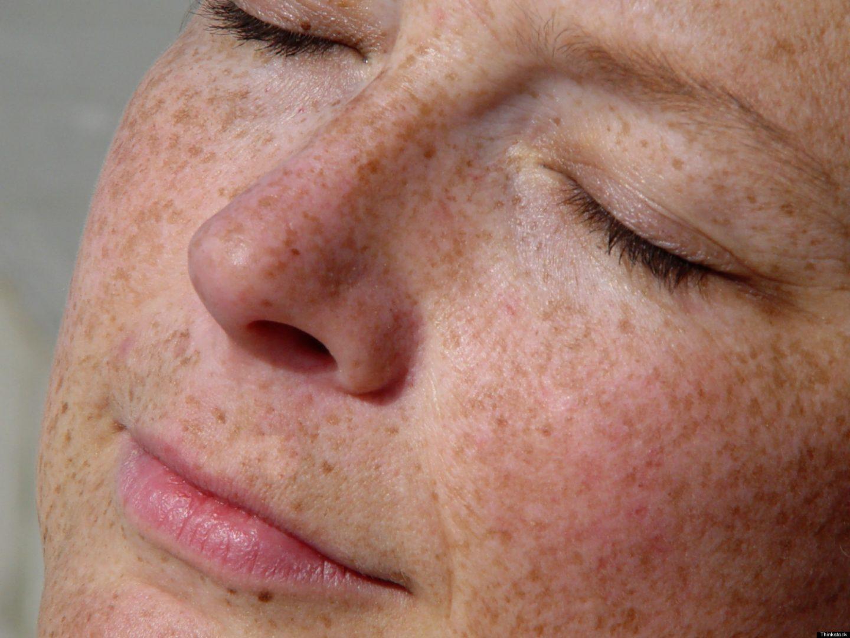 إزالة-التصبغات-الجلدية-من-الجسم