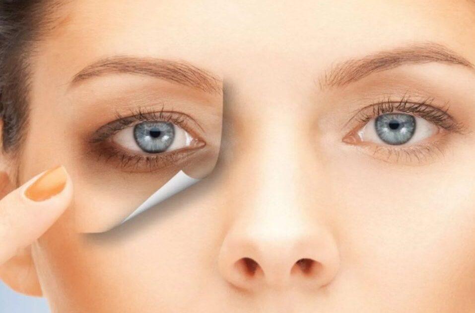 علاج-الهالات-السوداء-تحت-العين