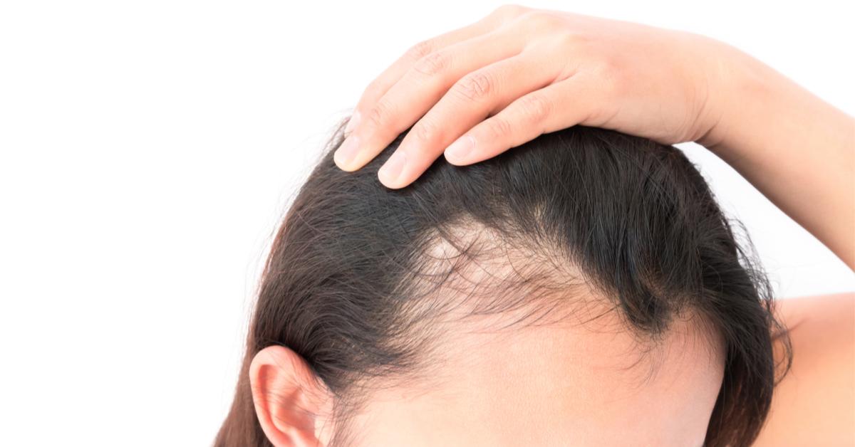 اسباب-تساقط-الشعر-من-الجذور